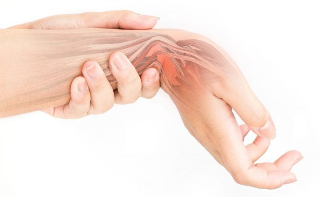 Carpal Tunnel Release Orthopedic Traumatology Surgery